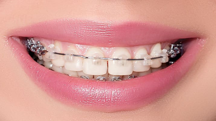 Smiling mouth with braces attached to teeth