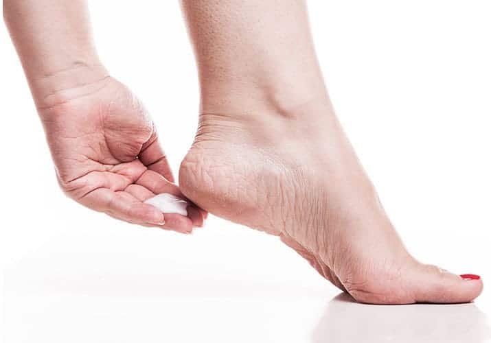 Woman applying callus removal cream to the cracked heels on her foot