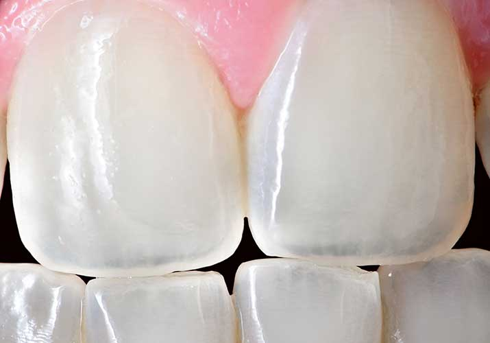 Sensitive teeth with enamel worn down