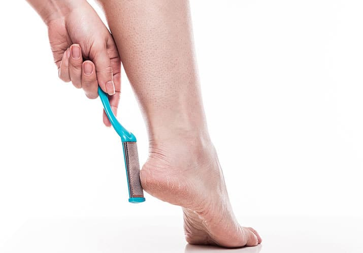 Woman filing ball of foot with callus remover