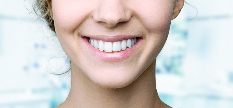 Teeth Whitening Using Light
